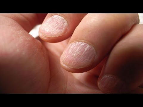 NAILS AND HEALTH INDICATORS – Brittle nails – an indicator of their health status Read
